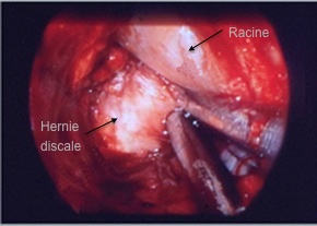 Traitement chirurgical d une hernie discale lombaire. Microchirurgie. Chirurgie mini invasive.